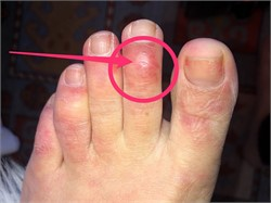 'COVID Toes' Might Be a Sign That a Person is Infected with the Novel Coronavirus